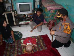 Kapolres Batubara Kunjungi Anak Penderita Hidrosefalus